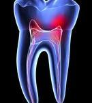 Zubobolja i lekovi