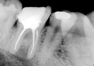 lečenje zuba - završetak, regeneracija