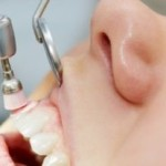 Lečenje parodontopatije za početnike