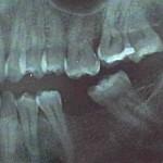 Zašto ne treba dugo čekati da se naprave zubi