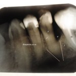 Naučite da tumačite RTG snimak zuba