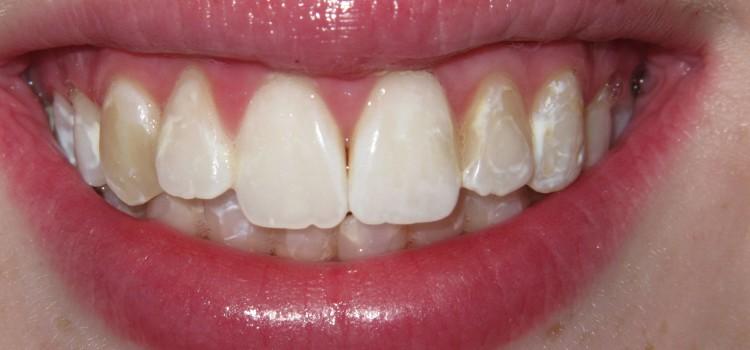3 Odlična razloga da ne belite zube kojegde i kojekako