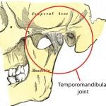 Vilični zglob - pristup u lečenju