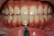 protiv beljenja zuba