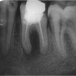 Dijaliza od loših zuba