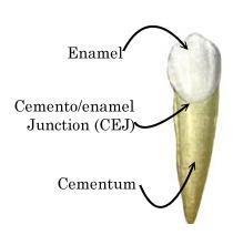 beljenje zuba gleđno cementna granica