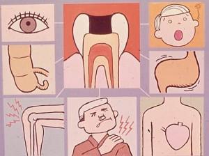 Koji zubi deluju kao žarište?