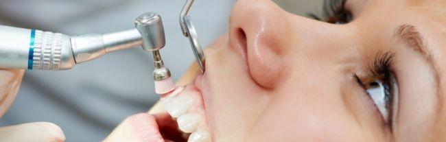 lečenje parodontopatije