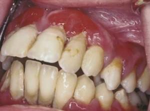 parodontopatija - generalizovana agresivna