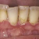 Parodontopatija za početnike