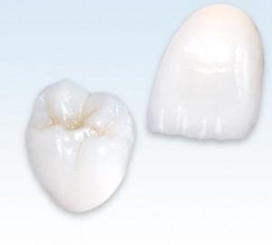 zirconia beljenje zuba