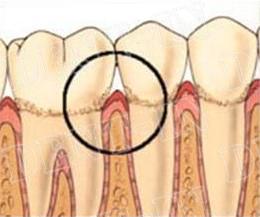 Upala desni - gingivitis