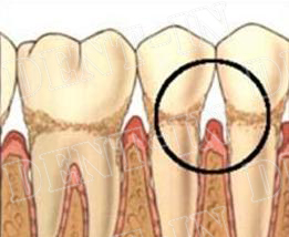 Klinički jasna parodontopatija