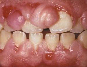 parodontopatija - gingivitis posledica fenitoina