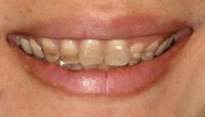 boja zuba - tetraciklinski zubi 1