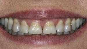 Zubi za 24 sata cijena