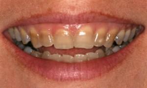 Trakice za izbeljivanje zuba u trudnoci