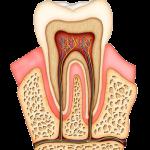Uspešno lečenje zuba