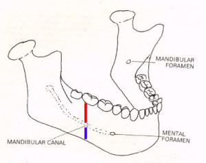 vađenje zuba