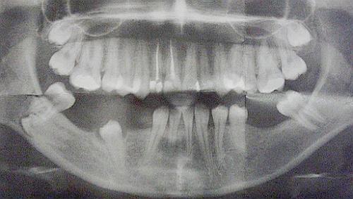 hipodoncija
