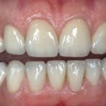 Mislite li da će vam svi zubi ispasti od parodontopatije?