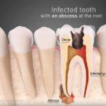 Od čega nastaju ciste na vrhu korena zuba?